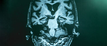 Doctors Say Your Risk of Alzheimer's Increases Two-Fold by Doing These 5 Things