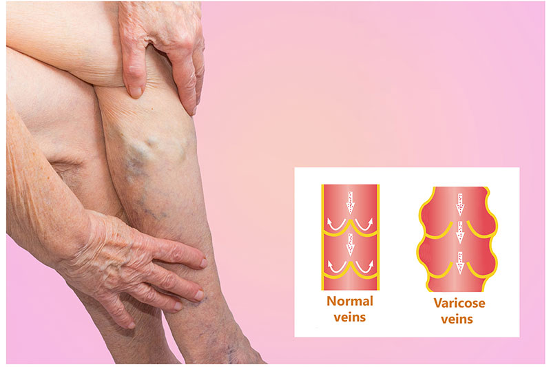 Recognize Deep Vein Thrombosis In Your Leg On Time By These 5 Symptoms