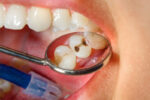 4 Complications That Can Arise If You Ignore A Cavity