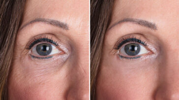 Do Antioxidants Actually Reverse The Appearance Of Aging?