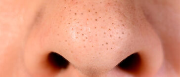 The Surprising All-Natural Ingredient You Need to Get Rid of Blackheads