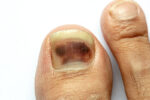 This Specific Fingernail Mark Could Be a Melanoma Symptom