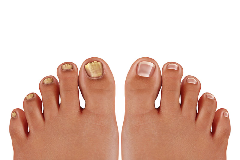 Fungal Infections In Your Nails