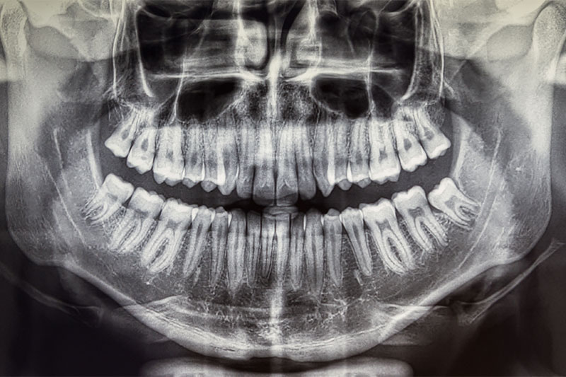 Researchers Have Found A Way To Regrow Teeth