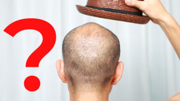 Is It Possible For Hats To Cause Hair Loss?