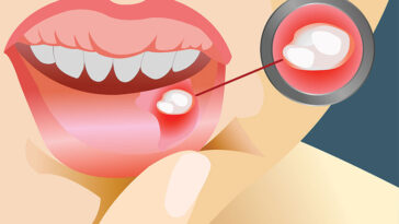 Here Is The Secret To Getting Rid Of Canker Sores