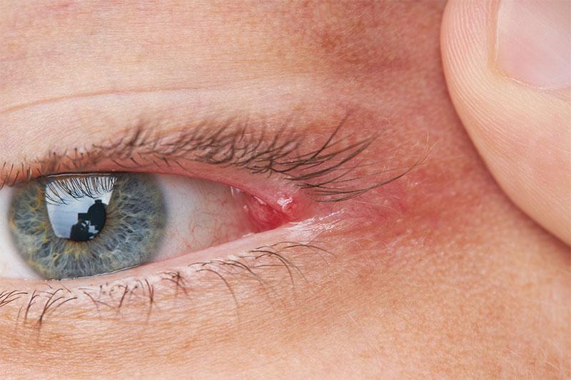 How Do You Keep Eyelid Hygiene Clean?