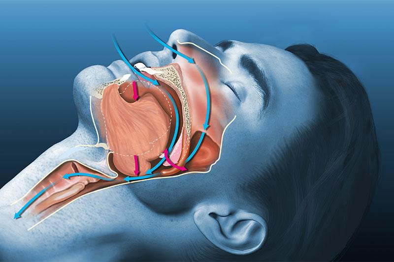 Hugging Something As You Sleep Helps Reduce Snoring And Sleep Apnea