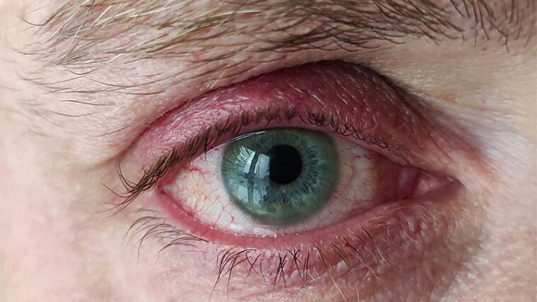 Fell Asleep Without Removing Your Lenses? This Can Happen To Your Eyes