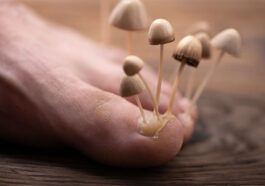 12 Signs Fungus Might Be Taking Over Your Body