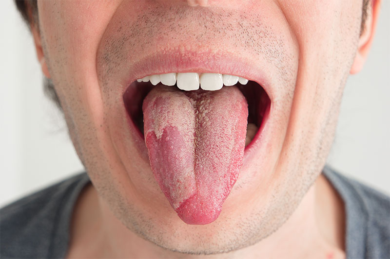 This Is What A White Tongue Says About Your Health! Very Few People Know This!