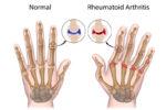 How Are Rheumatoid Arthritis And Psoriatic Arthritis Different?