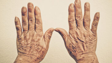 Are Your Hands Starting To Look Older? These Are The Reasons Why
