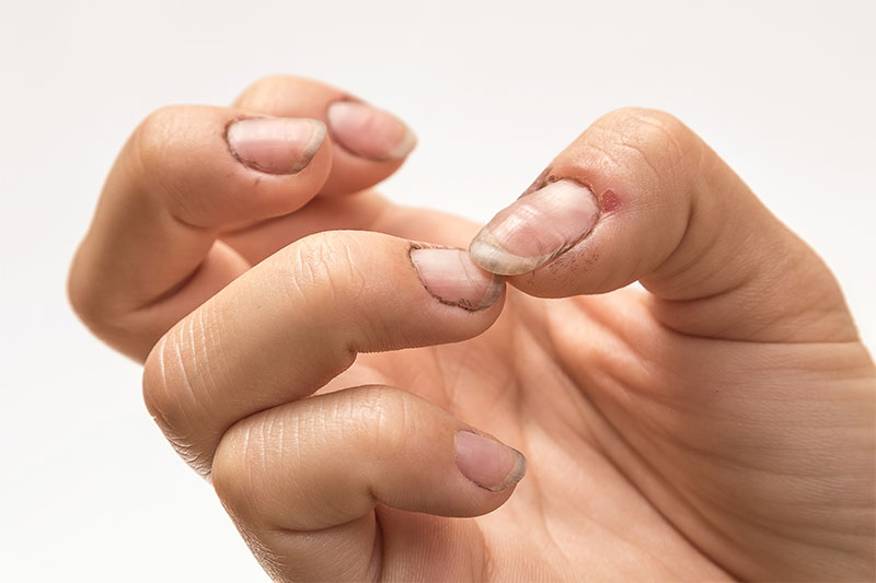 What Is Lurking Underneath Your Dirty Fingernails?