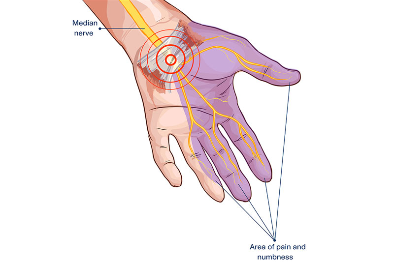 Why Does Carpal Tunnel Syndrome Cause Tingling And Pain?