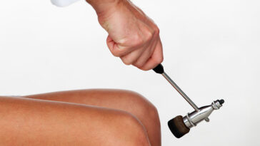 Why Does A Doctor Hit Your Knee During An Examination?