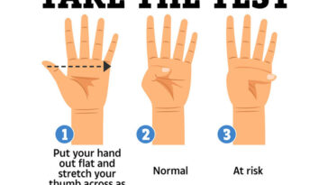Simple Thumb Test Could Indicate The Likelihood You're Harboring An Aortic Aneurysm